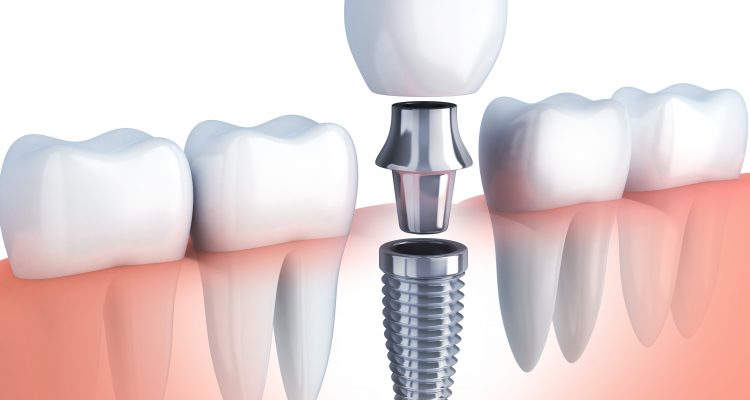 dental implants adelaide