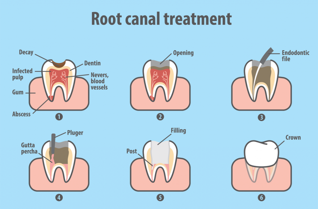 root canal treatment adelaide